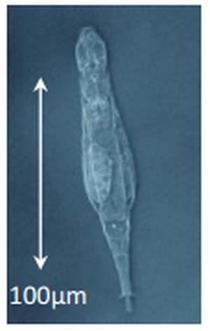 Un rotifère bdelloïde. © Boris Hespeels, Université de Namur (Belgique)